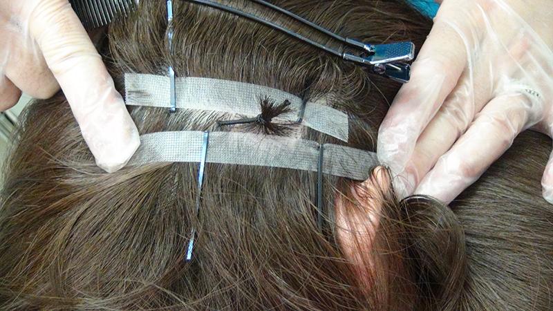 まゆげの植毛
