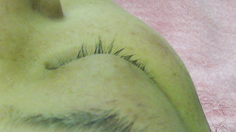 まつげの植毛