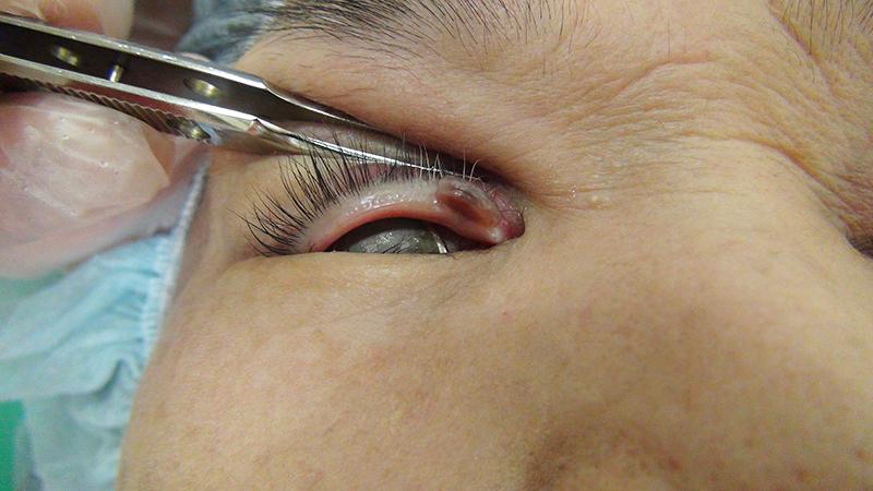 右上眼瞼部皮膚腫瘍