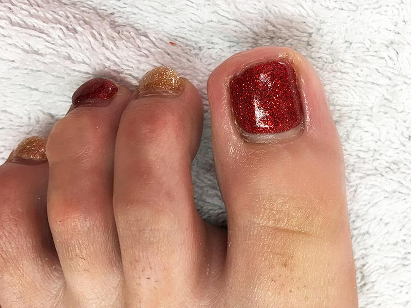 巻き爪(陥入爪)手術