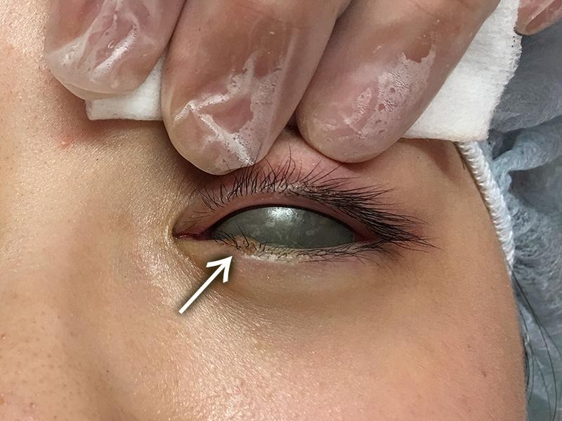 左下眼瞼部皮膚腫瘍のケース