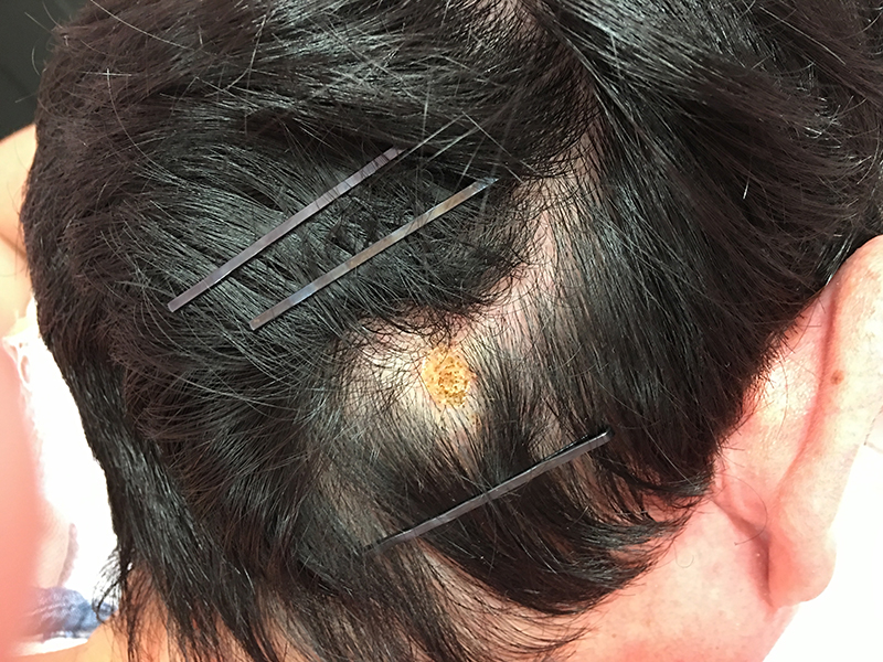 頭部および背部の皮膚腫瘍のケース