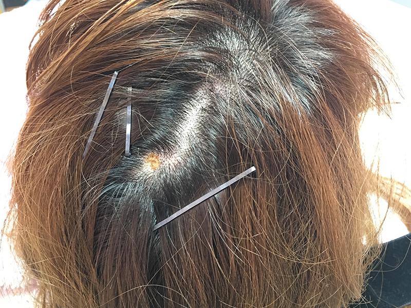 頭部皮膚腫瘍のケース