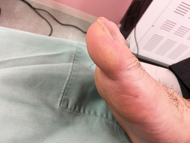 足の胼胝のケース