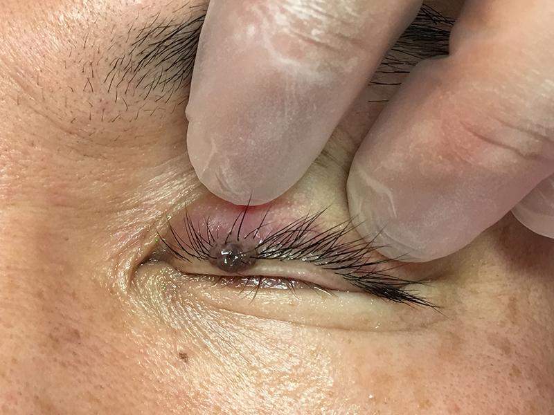 左上眼瞼部皮膚腫瘍