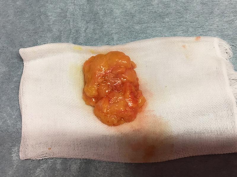 皮下腫瘍摘出術