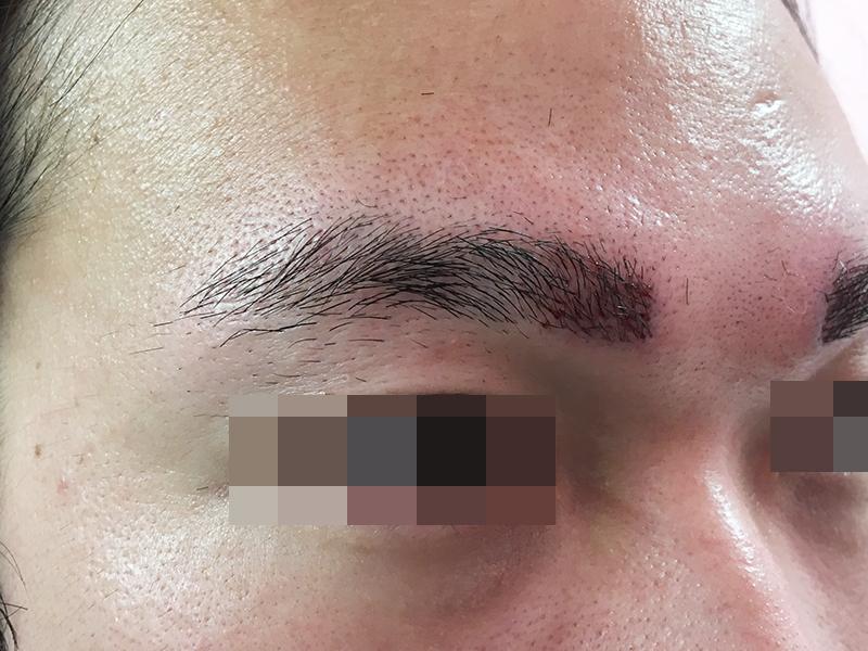 眉毛の植毛
