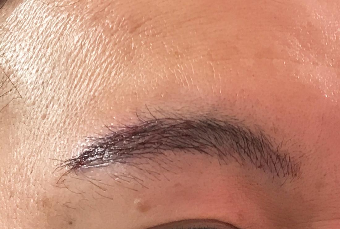 眉毛の植毛と4Dアートメイクを同時に行なった症例
