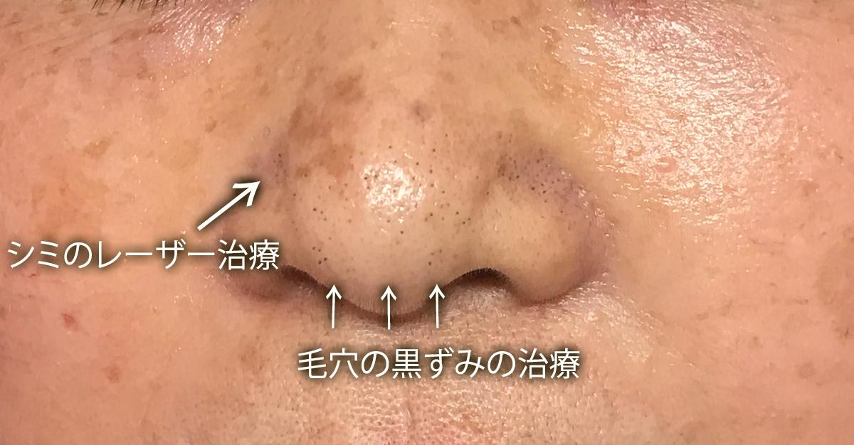 鼻の黒ずみのレーザー治療