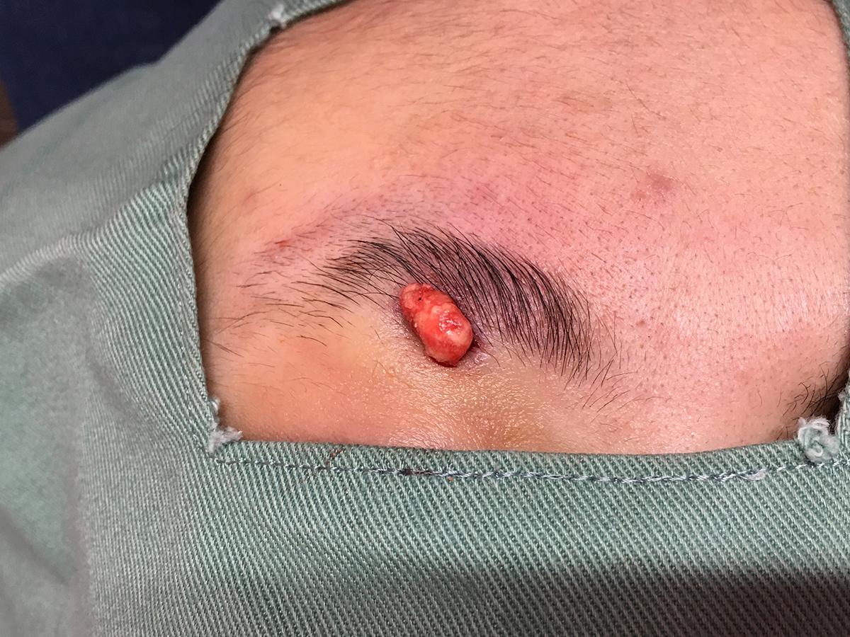 皮膚・皮下腫瘍摘出手術