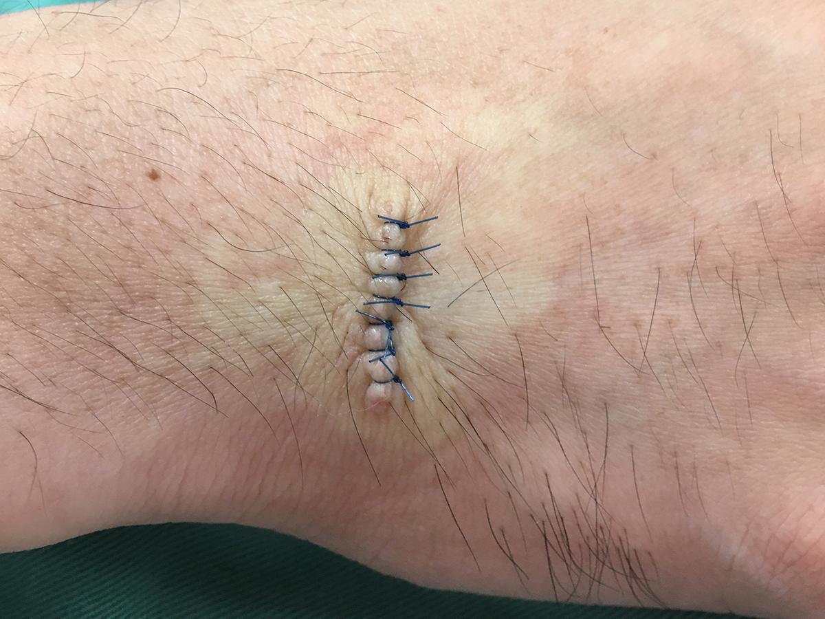 根性焼き修正手術