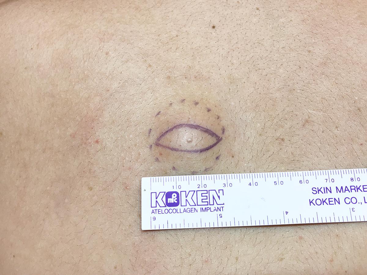 皮下腫瘍・粉瘤